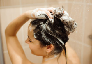 Scalp Psoriasis – Symptoms, Causes, and Effective Shampoos