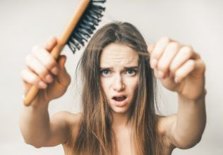 Know Everything About The Hair Loss Treatments